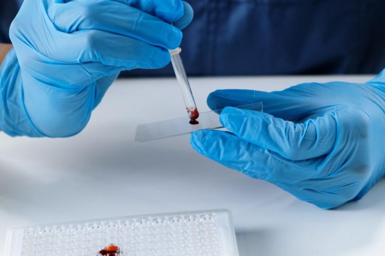 Vejledning til 'private label'-fabrikanter af medicinsk udstyr